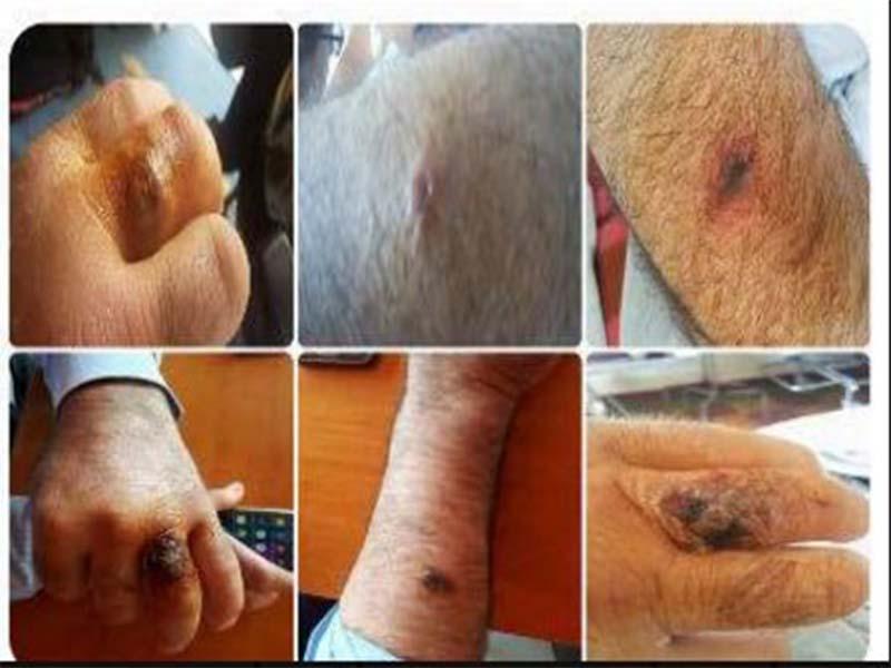 Rreziku nga antraksi  Pas bagëtive  sëmundja e rëndë prek edhe 4 persona
