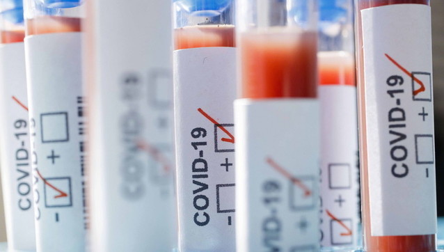Mjekët italianë propozojnë teste masive pas krizës së koronavirusit